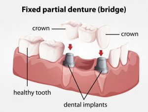 Implant Retained Permanent Bridges