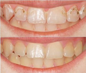 Removal Of Unsightly White Spots - Michigan City Dental