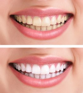 One Visit And Take Home Teeth Whitening Michigan City Dental P C