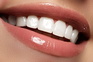 Porcelain Veneers - Michigan City Dental, P C  | Michigan City